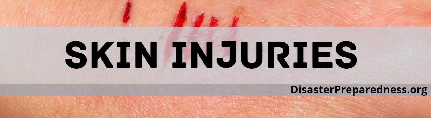 Skin Injuries