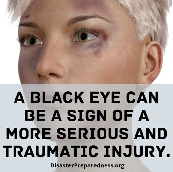 Black eyes can be signs of more serious injuries.